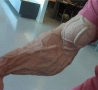 Cool Pictures - Freaky Arm